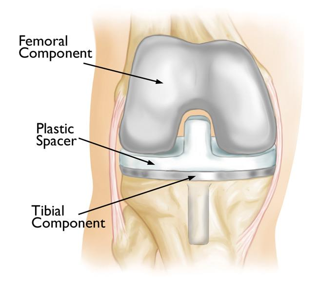 knee replacement components